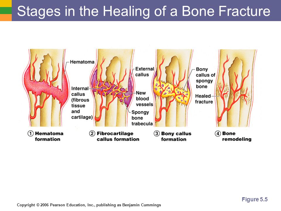 Copyright © 2006 Pearson Education, Inc., publishing as Benjamin Cummings Stages in the Healing of a Bone Fracture Figure 5.5