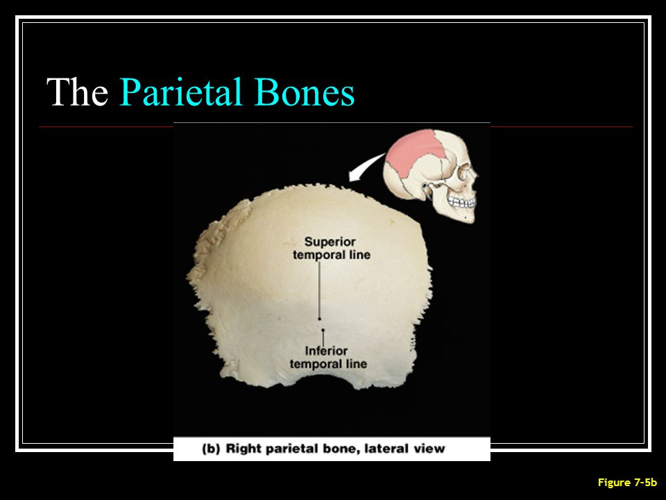 The Parietal Bones Figure 7–5b