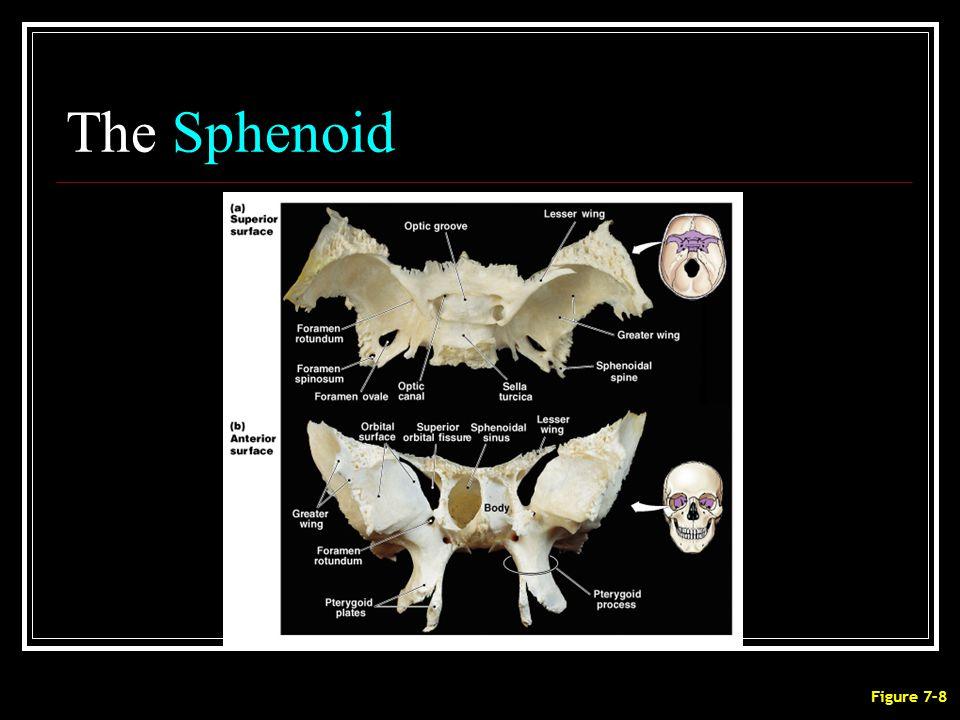 The Sphenoid Figure 7–8