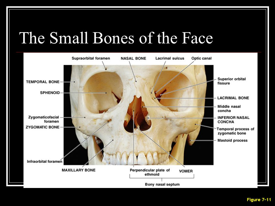 The Small Bones of the Face Figure 7–11