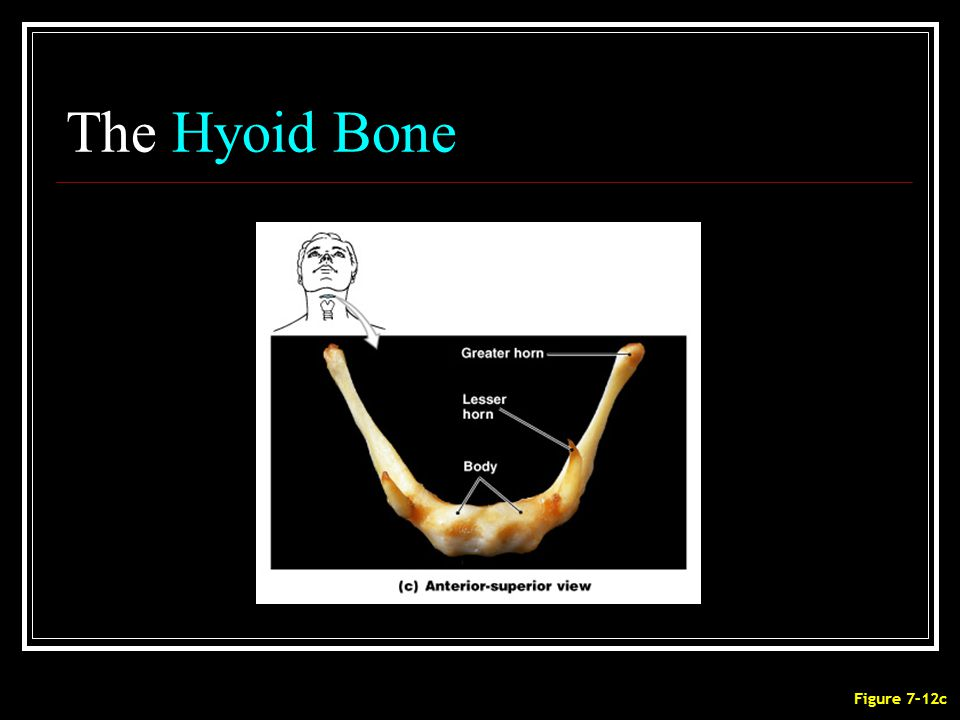 The Hyoid Bone Figure 7–12c