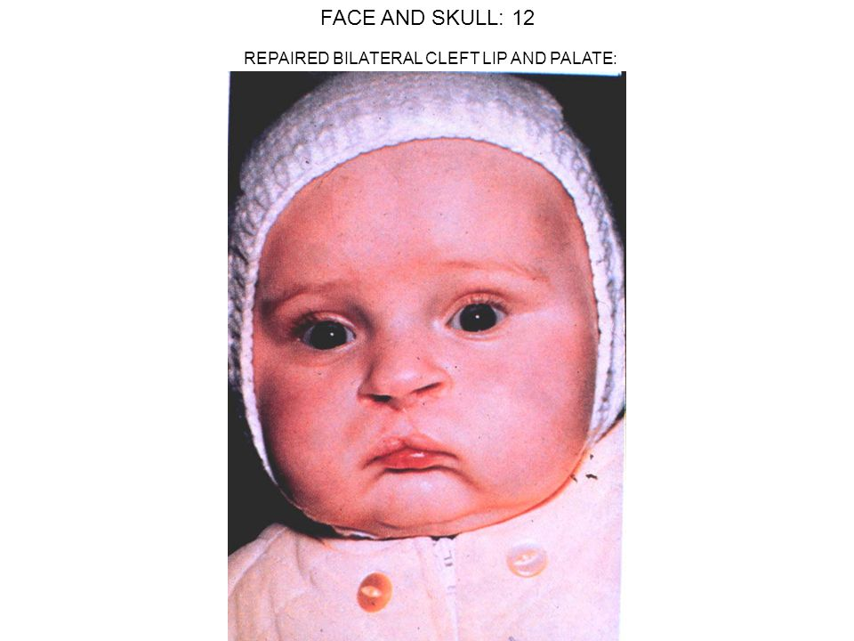 FACE AND SKULL: 12 REPAIRED BILATERAL CLEFT LIP AND PALATE:
