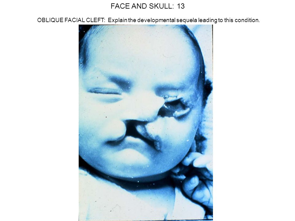 FACE AND SKULL: 13 OBLIQUE FACIAL CLEFT: Explain the developmental sequela leading to this condition.
