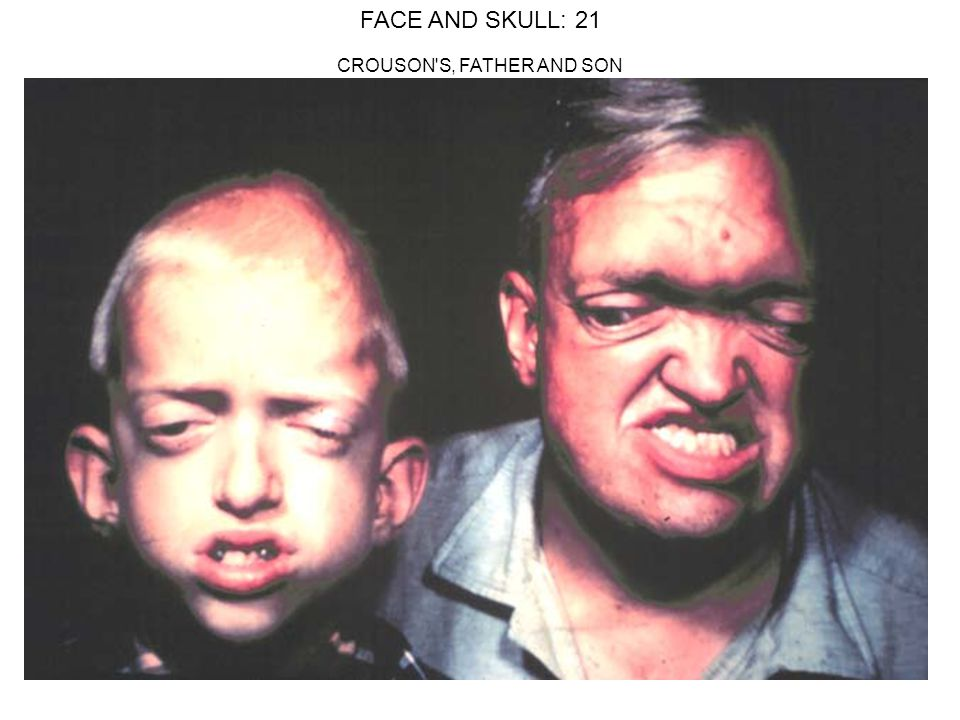 FACE AND SKULL: 21 CROUSON S, FATHER AND SON