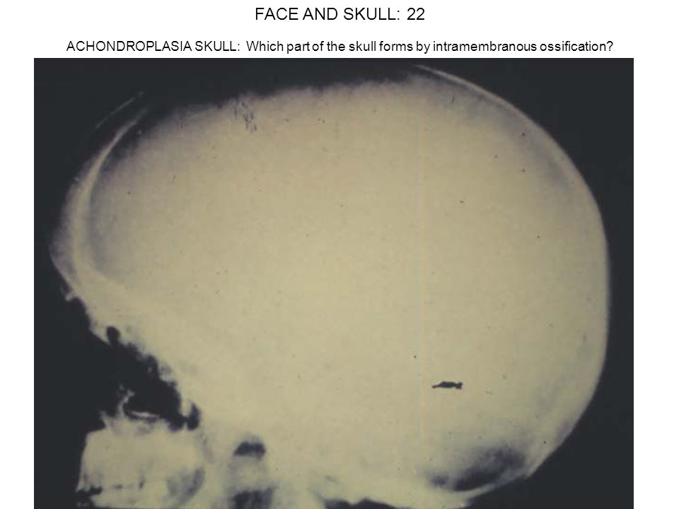 FACE AND SKULL: 22 ACHONDROPLASIA SKULL: Which part of the skull forms by intramembranous ossification
