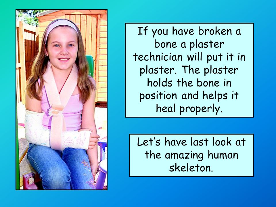 If you have broken a bone a plaster technician will put it in plaster.