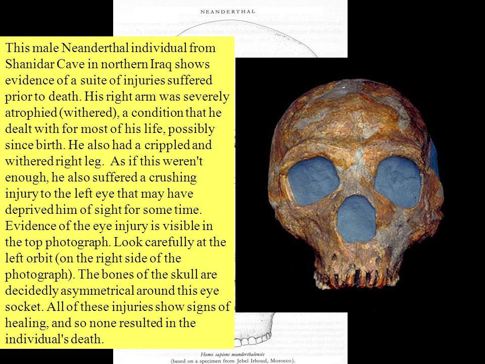 Homo sapiens neanderthalensis First hominid known to have buried the dead.