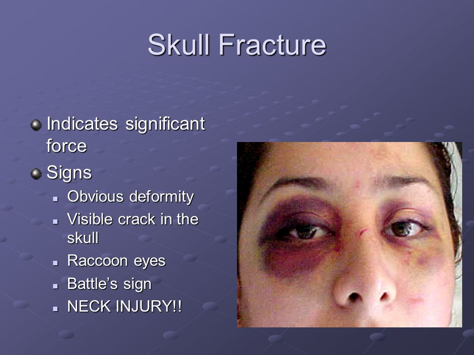 Skull Fracture Indicates significant force Signs Obvious deformity Obvious deformity Visible crack in the skull Visible crack in the skull Raccoon eyes Raccoon eyes Battle's sign Battle's sign NECK INJURY!.