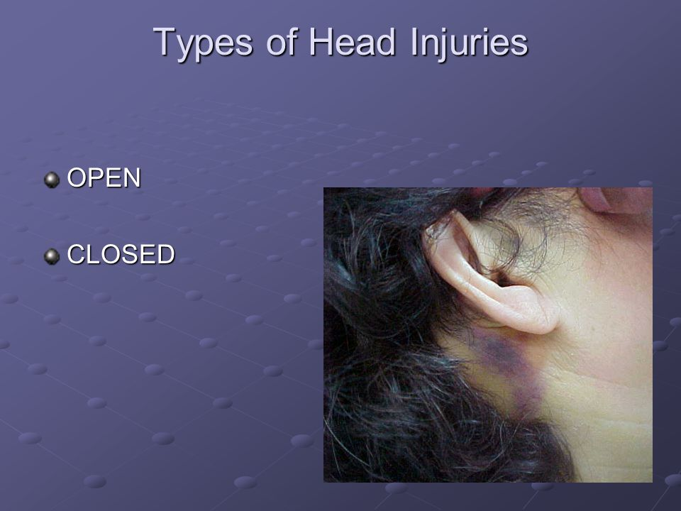 Types of Head Injuries OPENCLOSED