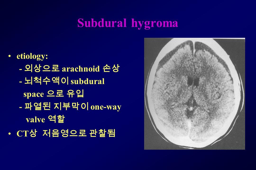 Subdural hygroma etiology: - 외상으로 arachnoid 손상 - 뇌척수액이 subdural space 으로 유입 - 파열된 지부막이 one-way valve 역할 CT 상 저음영으로 관찰됨