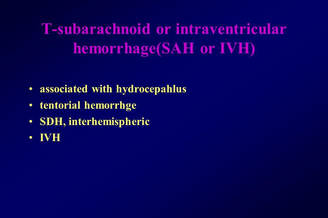 T-subarachnoid or intraventricular hemorrhage(SAH or IVH) associated with hydrocepahlus tentorial hemorrhge SDH, interhemispheric IVH
