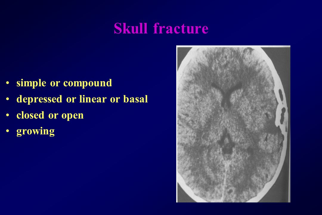 Skull fracture simple or compound depressed or linear or basal closed or open growing
