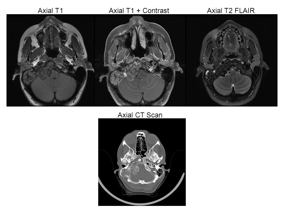 Axial CT Scan Axial T1Axial T1 + ContrastAxial T2 FLAIR