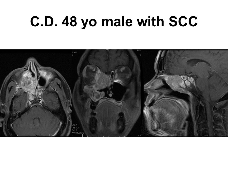 C.D. 48 yo male with SCC