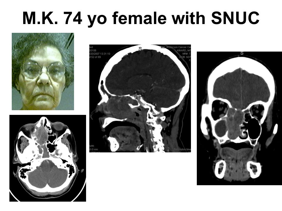 M.K. 74 yo female with SNUC