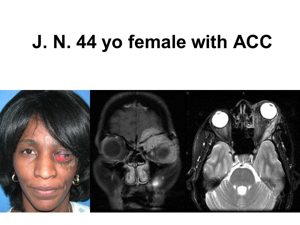 J. N. 44 yo female with ACC