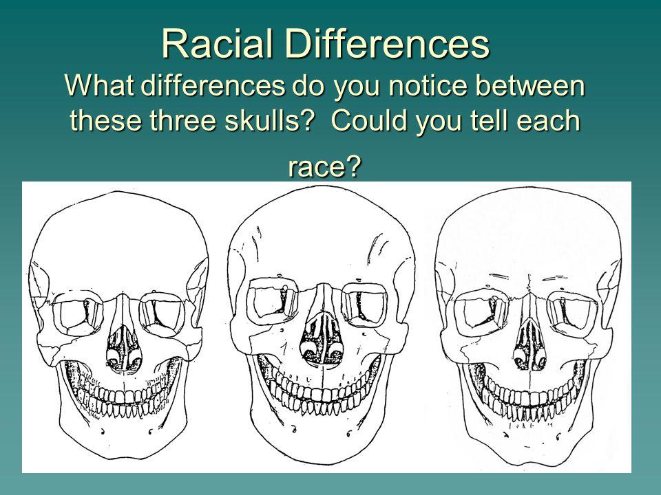 26 Race Characteristics  Caucasoids—have a long, narrow nasal aperture, a triangular palate, oval orbits, narrow zygomatic arches and narrow mandible