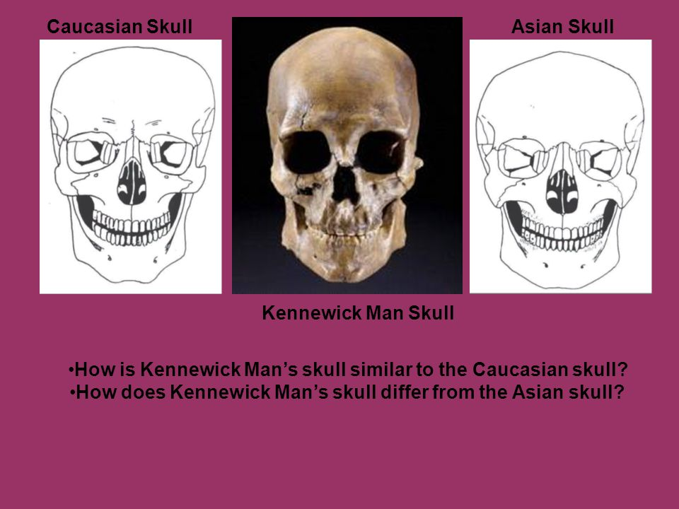 Caucasian SkullAsian Skull Kennewick Man Skull How is Kennewick Man's skull similar to the Caucasian skull? How does Kennewick Man's skull differ from