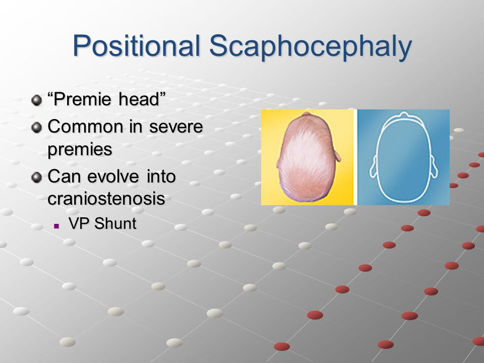 Positional Scaphocephaly Premie head Common in severe premies Can evolve into craniostenosis VP Shunt VP Shunt