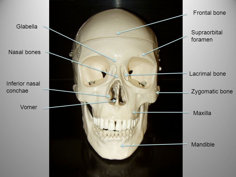 Glabella Frontal bone Supraorbital foramen Lacrimal bone Zygomatic bone Maxilla Mandible Nasal bones Inferior nasal conchae Vomer