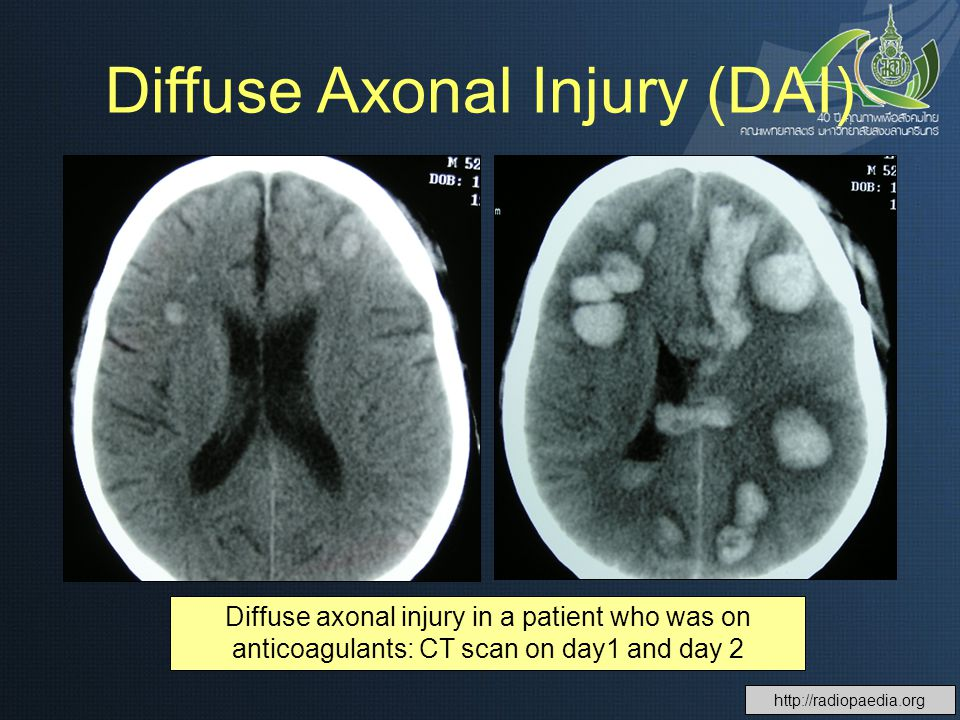 Diffuse axonal injury in a patient who was on anticoagulants: CT scan on day1 and day 2 Diffuse Axonal Injury (DAI)