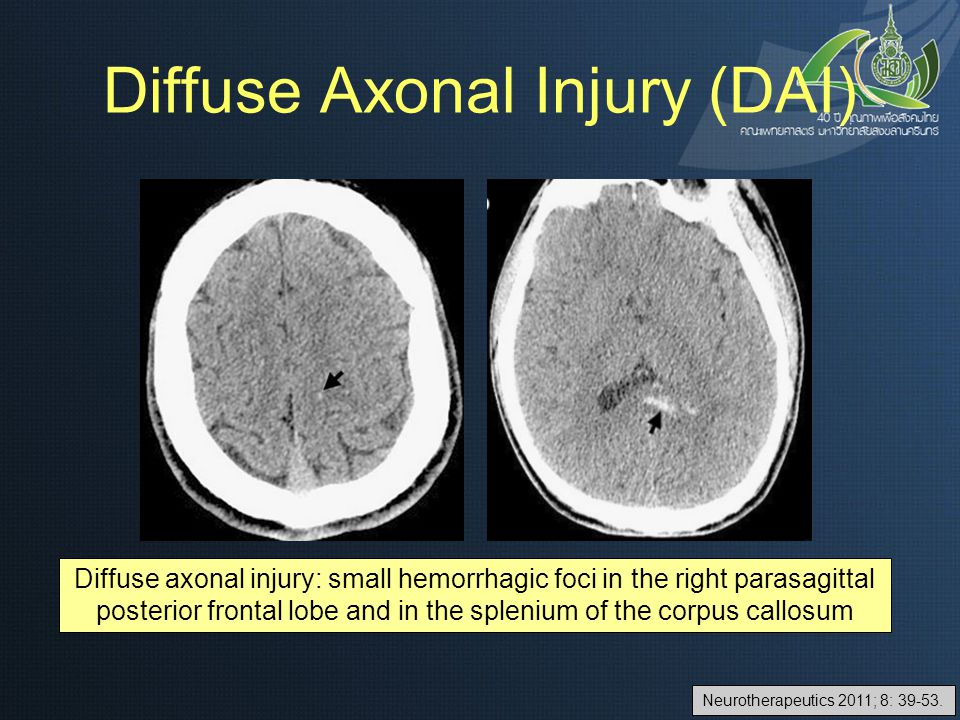 Diffuse axonal injury: small hemorrhagic foci in the right parasagittal posterior frontal lobe and in the splenium of the corpus callosum Neurotherape