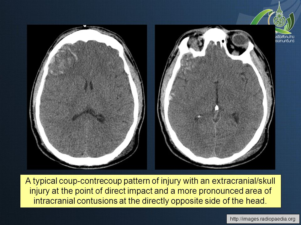 A typical coup-contrecoup pattern of injury with an extracranial/skull injury at the point of direct impact and a more pronounced area of intracranial