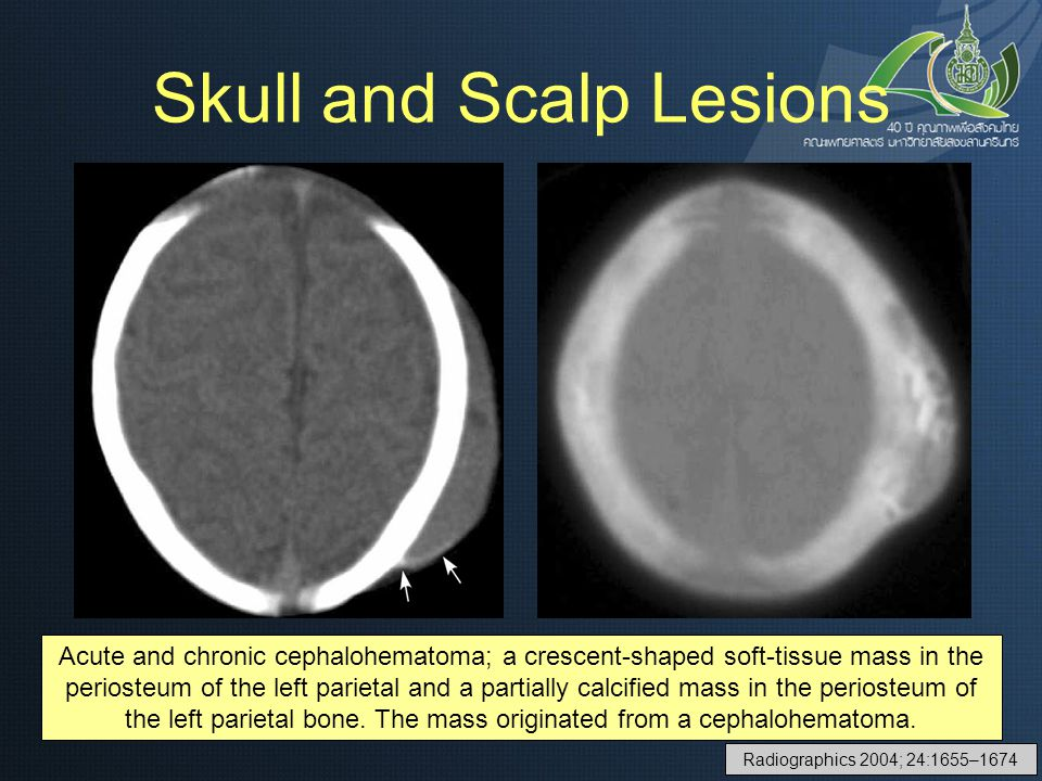 Skull and Scalp Lesions Acute and chronic cephalohematoma; a crescent-shaped soft-tissue mass in the periosteum of the left parietal and a partially c