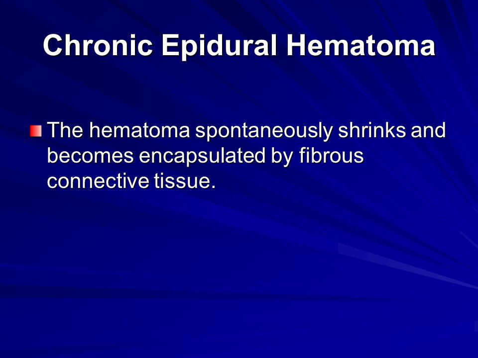 Chronic Epidural Hematoma The hematoma spontaneously shrinks and becomes encapsulated by fibrous connective tissue.