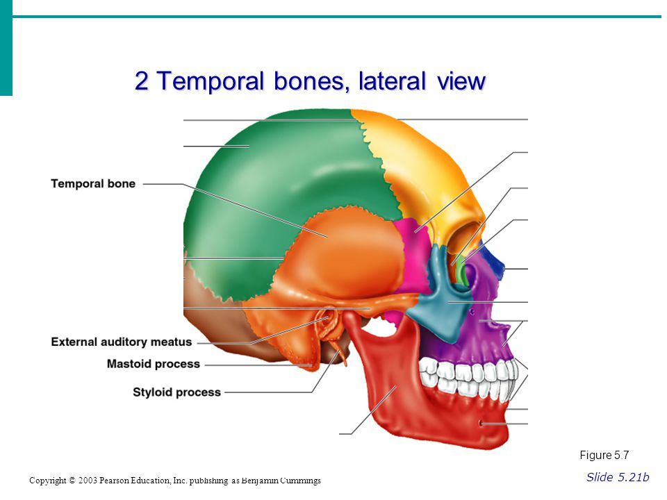 2 Temporal bones, lateral view Slide 5.21b Copyright © 2003 Pearson Education, Inc.