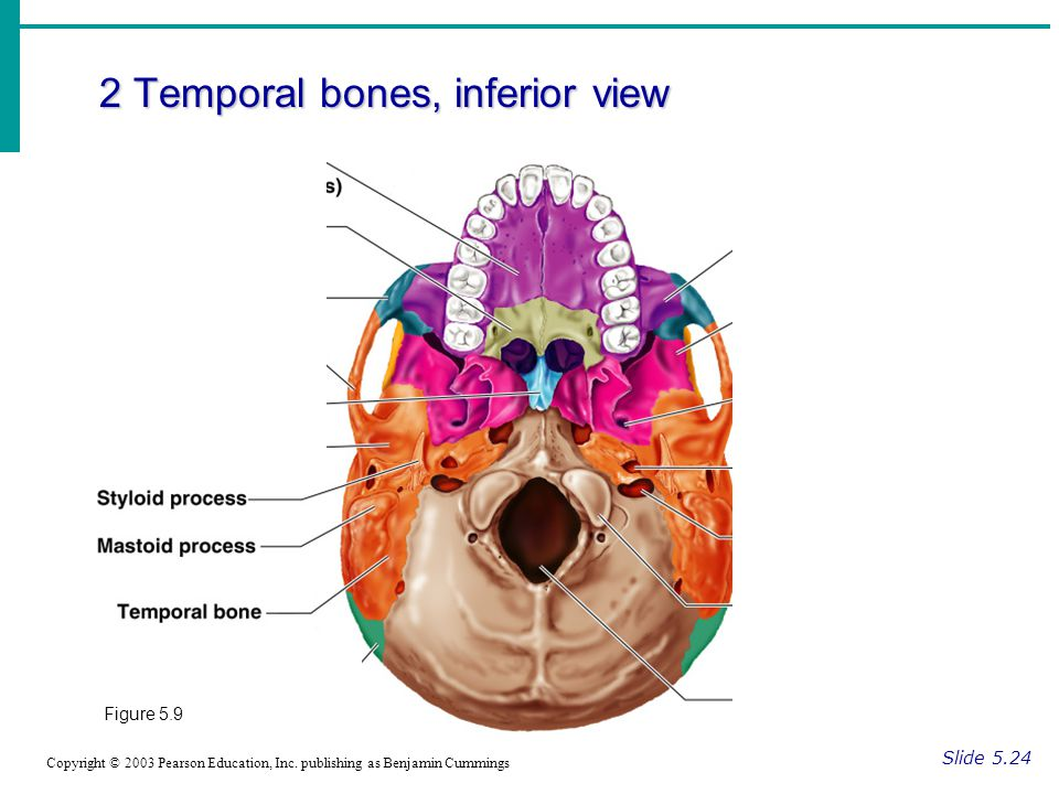 2 Temporal bones, inferior view Slide 5.24 Copyright © 2003 Pearson Education, Inc.