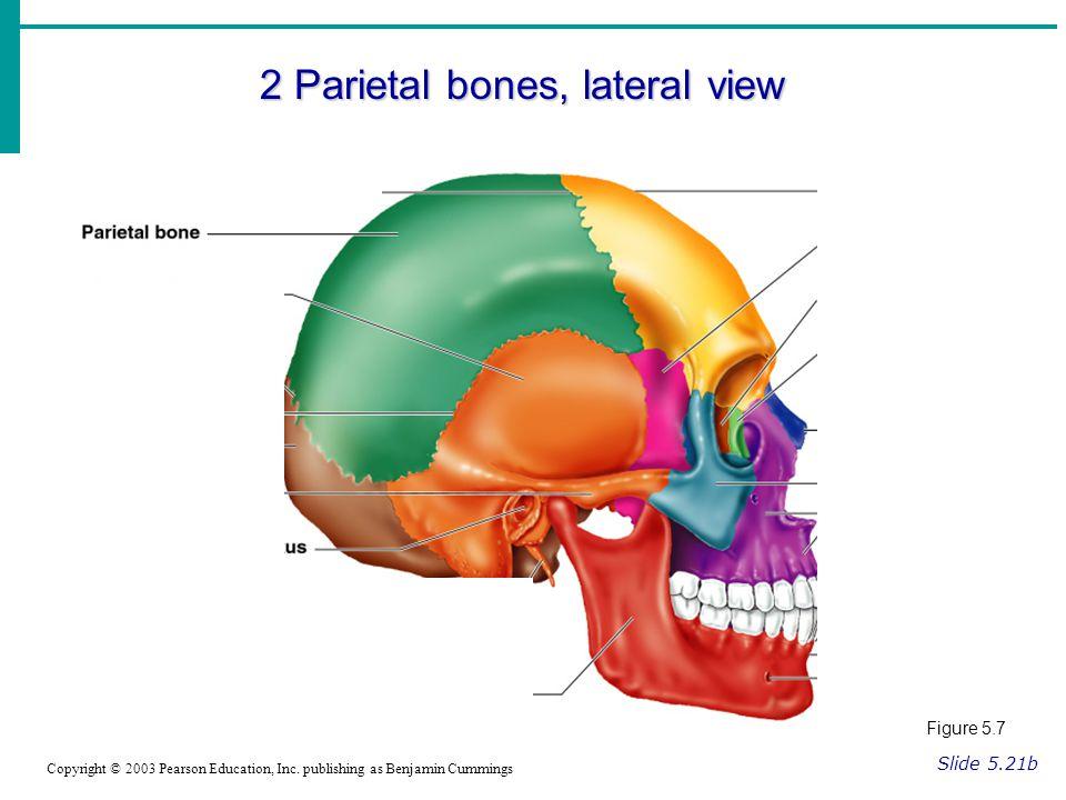 2 Parietal bones, lateral view Slide 5.21b Copyright © 2003 Pearson Education, Inc.