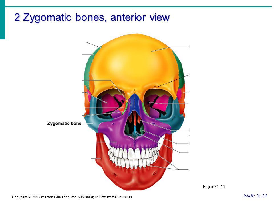 2 Zygomatic bones, anterior view Slide 5.22 Copyright © 2003 Pearson Education, Inc.