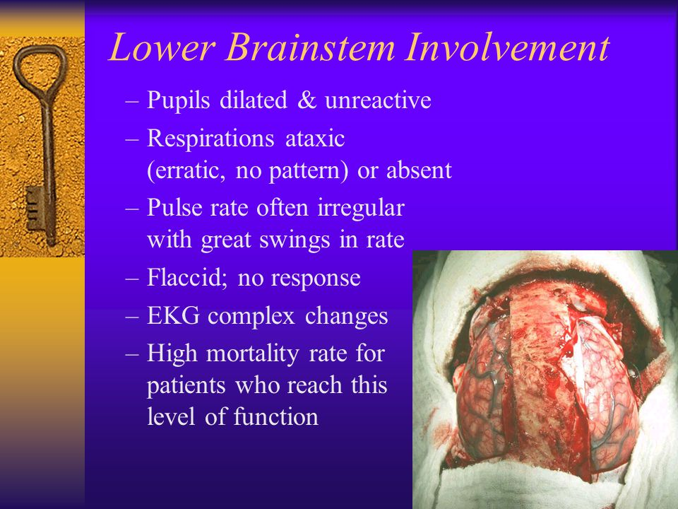 Lower Brainstem Involvement –Pupils dilated & unreactive –Respirations ataxic (erratic, no pattern) or absent –Pulse rate often irregular with great swings in rate –Flaccid; no response –EKG complex changes –High mortality rate for patients who reach this level of function