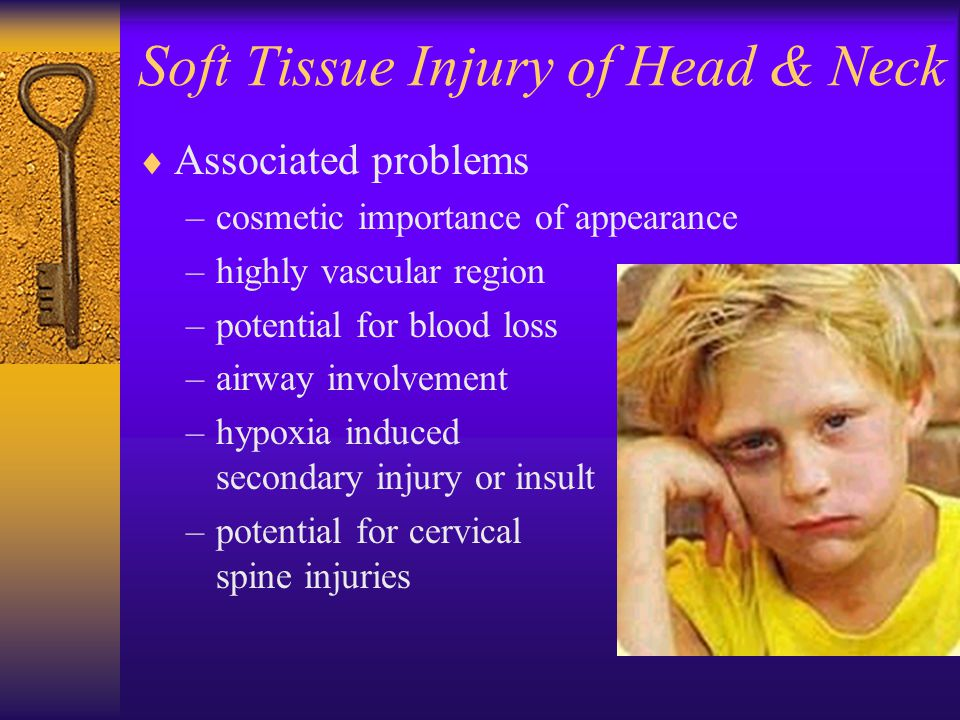 Soft Tissue Injury of Head & Neck  Associated problems –cosmetic importance of appearance –highly vascular region –potential for blood loss –airway i