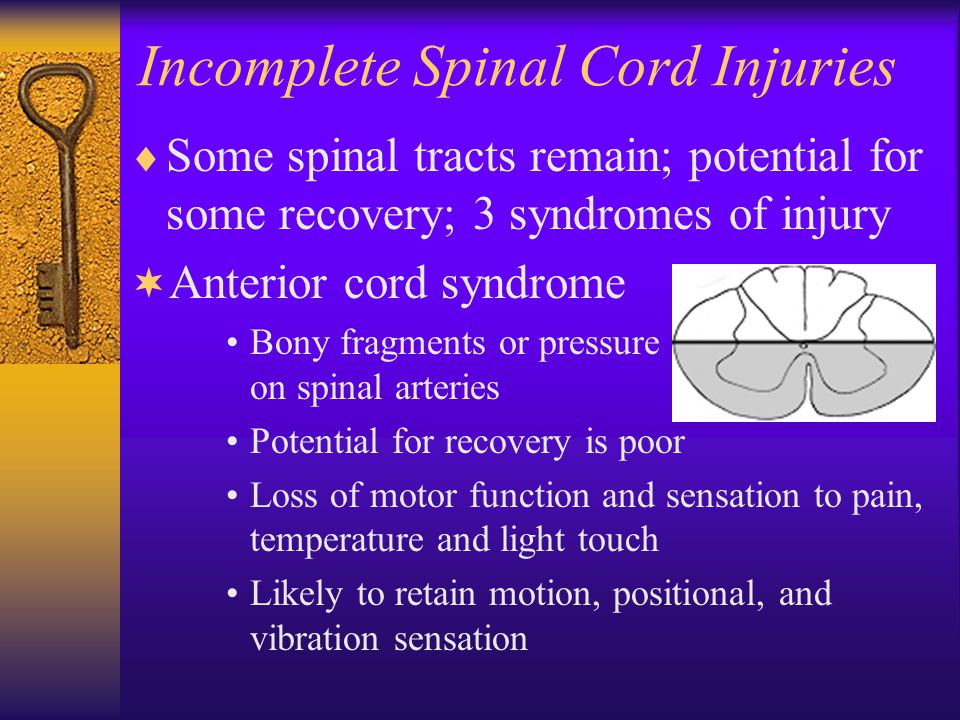 Incomplete Spinal Cord Injuries  Some spinal tracts remain; potential for some recovery; 3 syndromes of injury ¬ Anterior cord syndrome Bony fragments or pressure on spinal arteries Potential for recovery is poor Loss of motor function and sensation to pain, temperature and light touch Likely to retain motion, positional, and vibration sensation