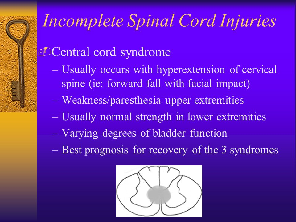 Incomplete Spinal Cord Injuries  Central cord syndrome –Usually occurs with hyperextension of cervical spine (ie: forward fall with facial impact) –Weakness/paresthesia upper extremities –Usually normal strength in lower extremities –Varying degrees of bladder function –Best prognosis for recovery of the 3 syndromes