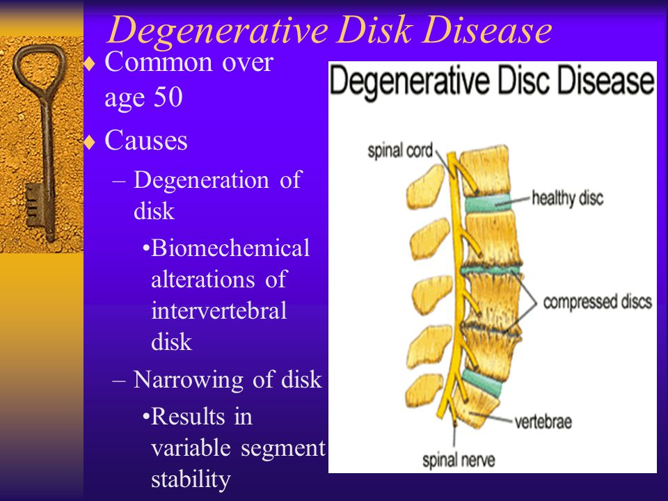 Degenerative Disk Disease  Common over age 50  Causes –Degeneration of disk Biomechemical alterations of intervertebral disk –Narrowing of disk Resu