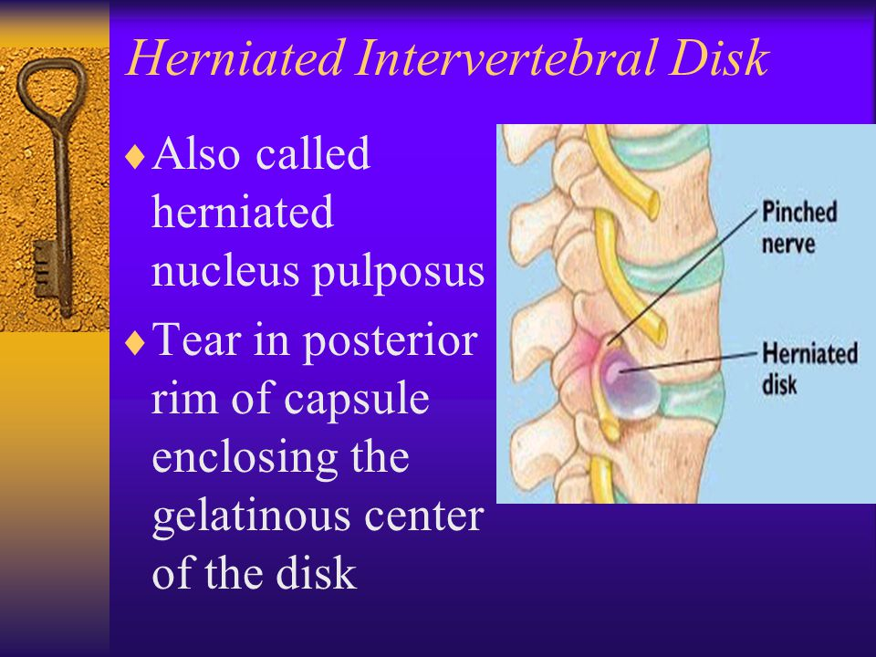 Herniated Intervertebral Disk  Also called herniated nucleus pulposus  Tear in posterior rim of capsule enclosing the gelatinous center of the disk