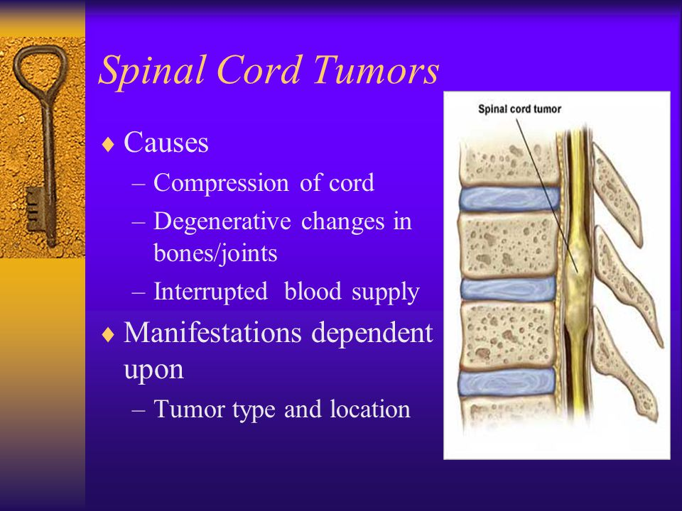 Spinal Cord Tumors  Causes –Compression of cord –Degenerative changes in bones/joints –Interrupted blood supply  Manifestations dependent upon –Tumor type and location