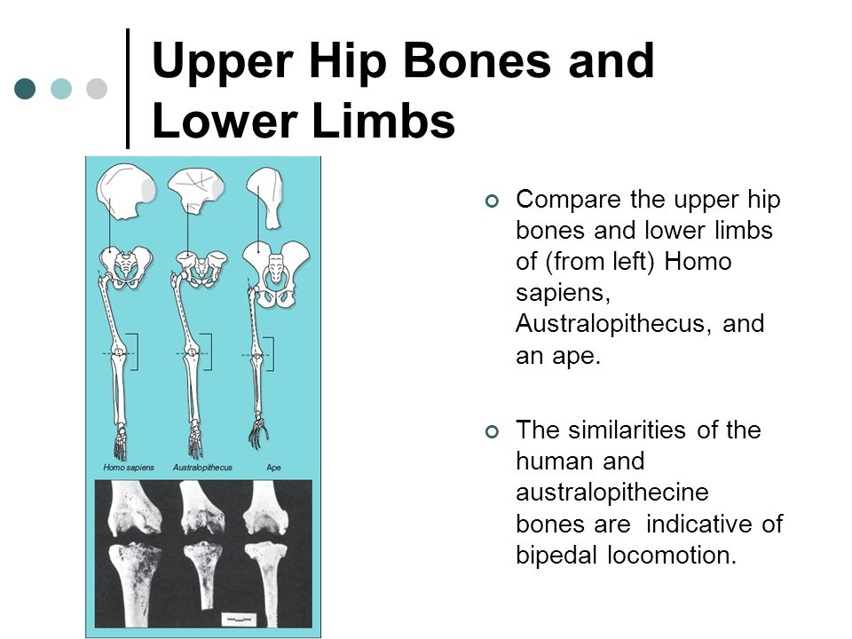 Upper Hip Bones and Lower Limbs Compare the upper hip bones and lower limbs of (from left) Homo sapiens, Australopithecus, and an ape. The similaritie