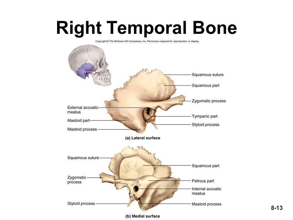 8-13 Right Temporal Bone