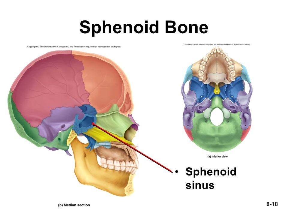 8-18 Sphenoid Bone Sphenoid sinus