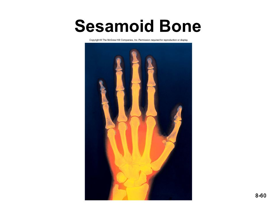 8-60 Sesamoid Bone