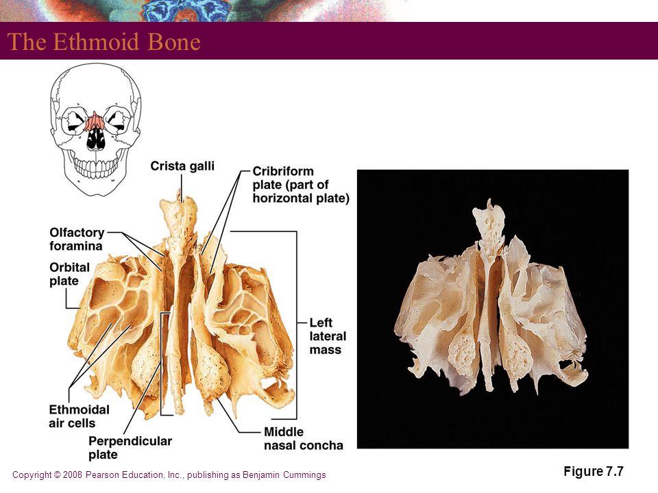 Copyright © 2008 Pearson Education, Inc., publishing as Benjamin Cummings Figure 7.7 The Ethmoid Bone
