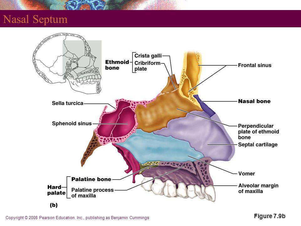 Copyright © 2008 Pearson Education, Inc., publishing as Benjamin Cummings Nasal Septum Figure 7.9b