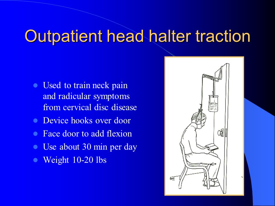 Outpatient head halter traction Used to train neck pain and radicular symptoms from cervical disc disease Device hooks over door Face door to add flex
