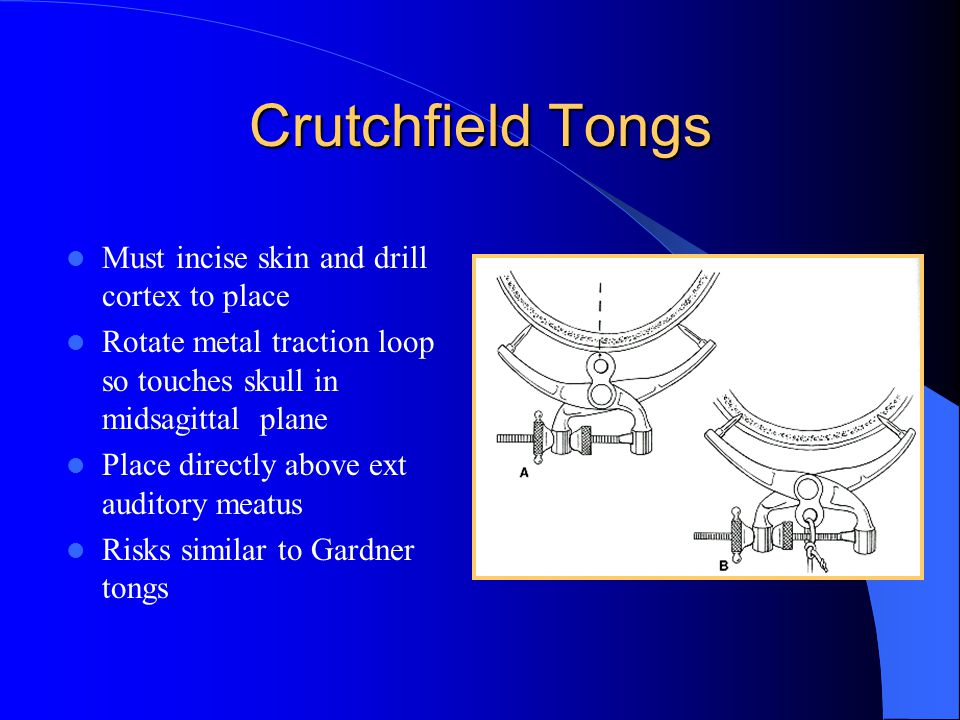 Crutchfield Tongs Must incise skin and drill cortex to place Rotate metal traction loop so touches skull in midsagittal plane Place directly above ext