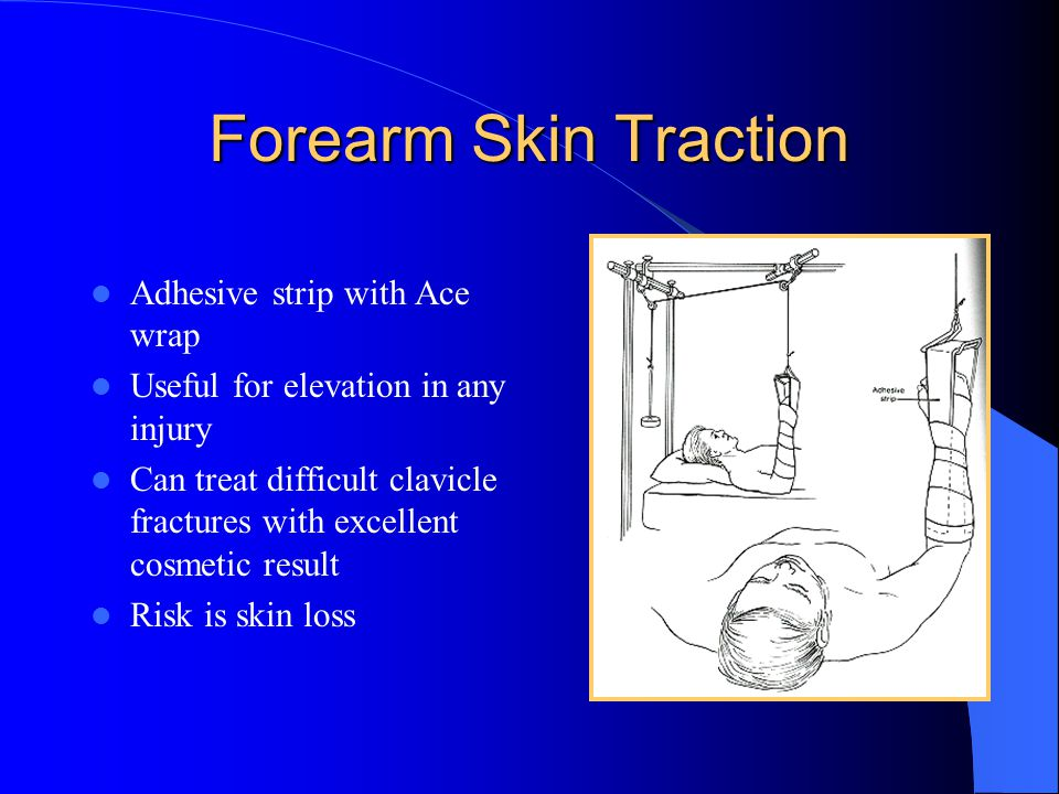 Forearm Skin Traction Adhesive strip with Ace wrap Useful for elevation in any injury Can treat difficult clavicle fractures with excellent cosmetic r