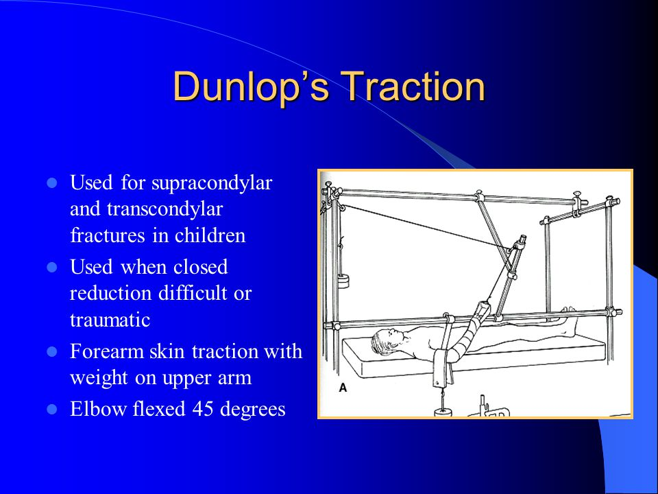 Dunlop's Traction Used for supracondylar and transcondylar fractures in children Used when closed reduction difficult or traumatic Forearm skin tracti